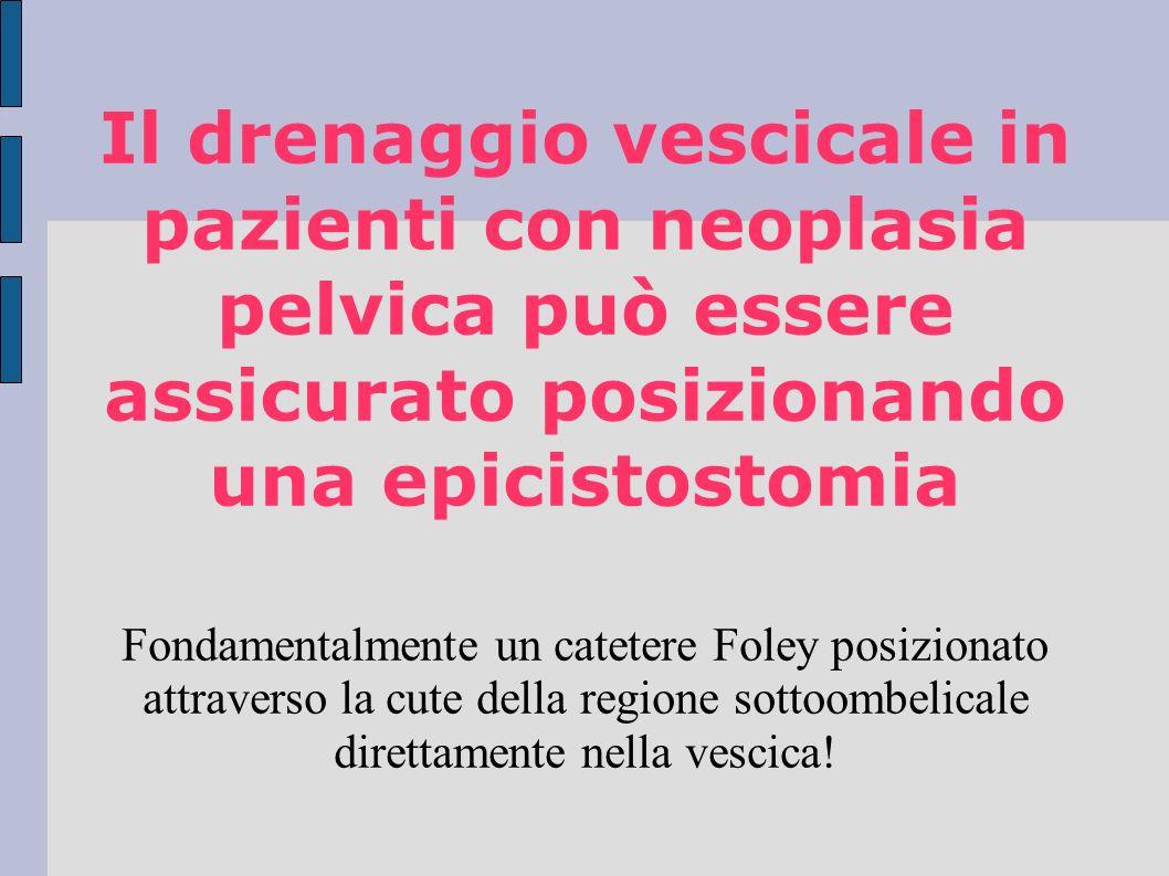 Il drenaggio vescicale in pazienti con neoplasia pelvica può essere assicurato posizionando una epicistostomia