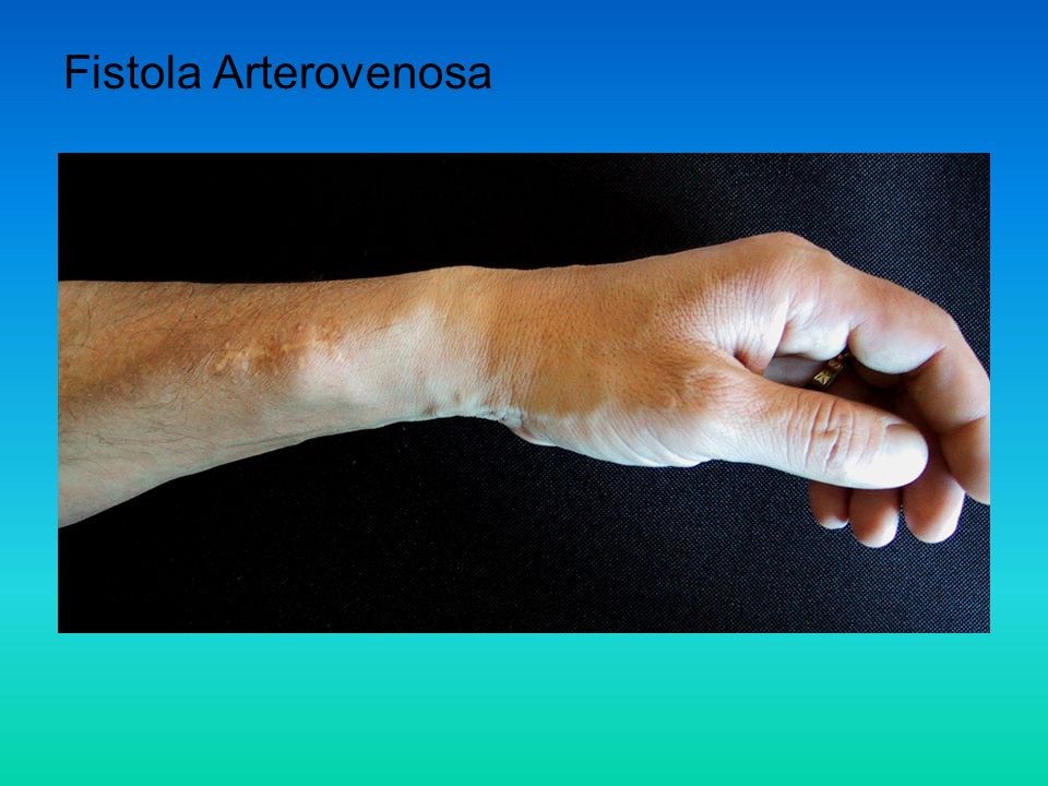 Fistola Arterovenosa
