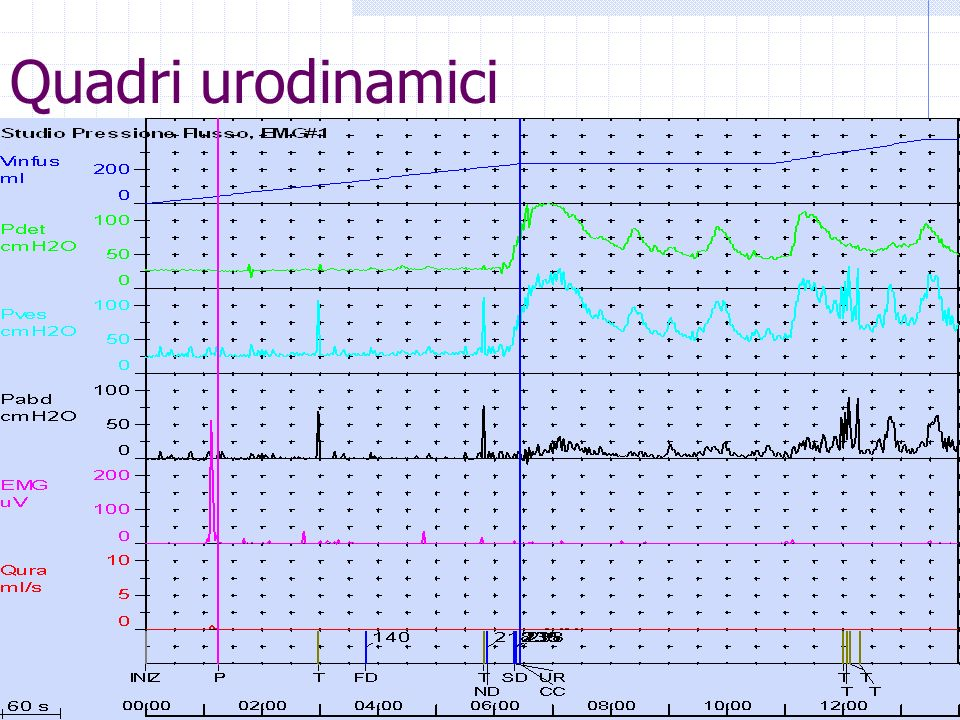 Quadri urodinamici RPM: 30ml