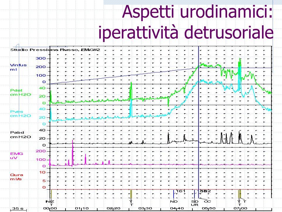 Aspetti urodinamici: iperattività detrusoriale