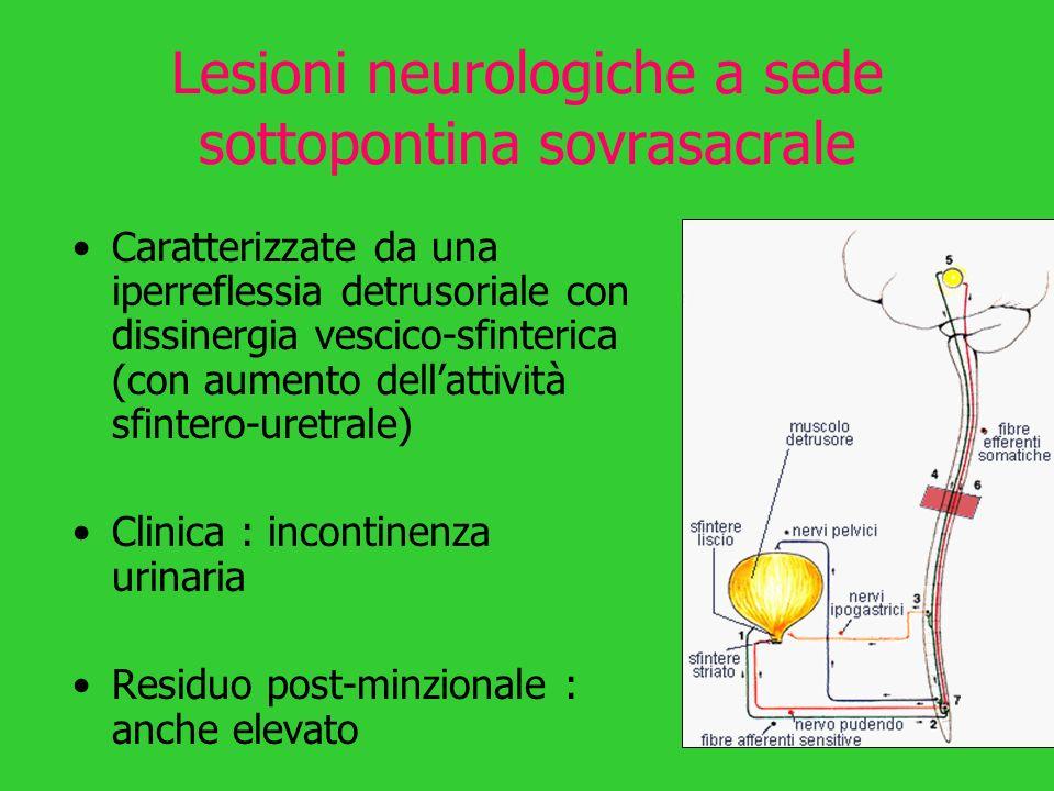Lesioni neurologiche a sede sottopontina sovrasacrale