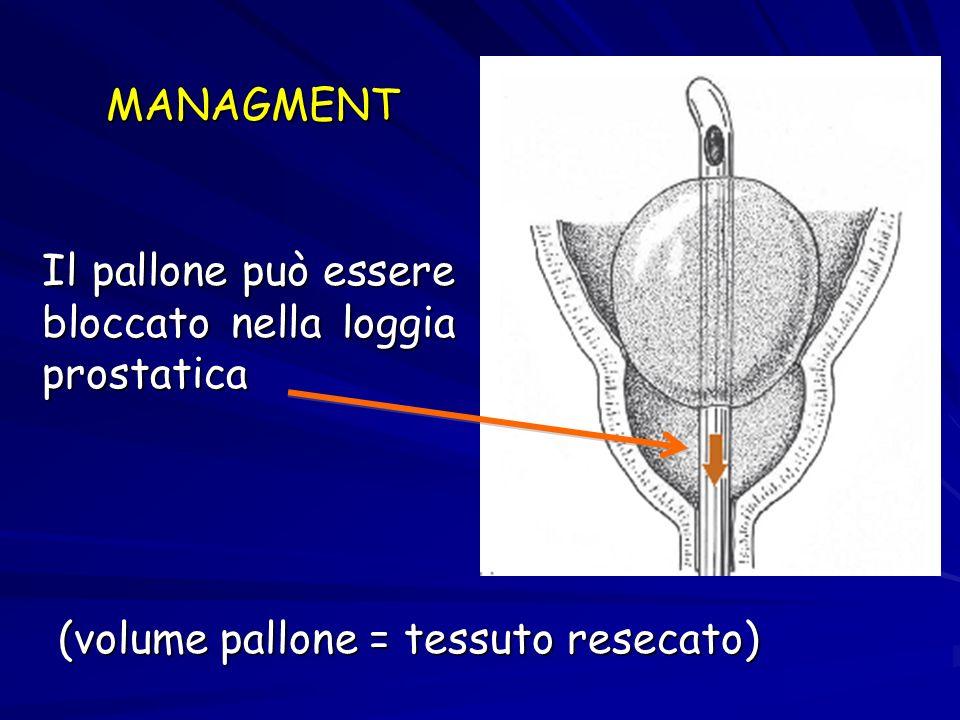 MANAGMENT Il pallone può essere bloccato nella loggia prostatica.