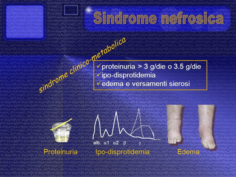 Sindrome nefrosica sindrome clinico-metabolica