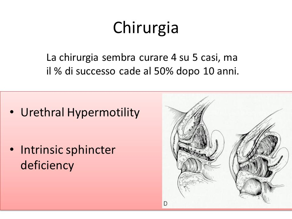 Chirurgia Urethral Hypermotility Intrinsic sphincter deficiency