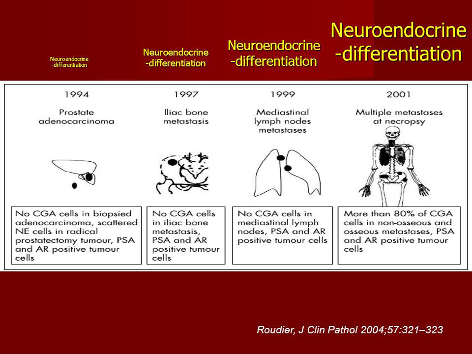 Neuroendocrine-differentiation
