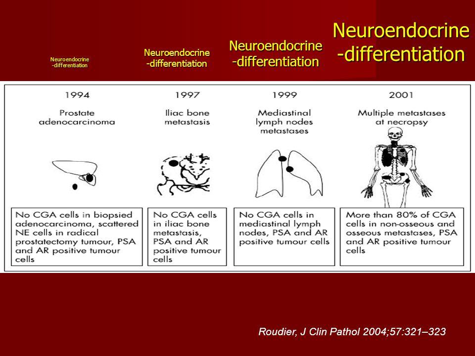 Neuroendocrine-differentiation