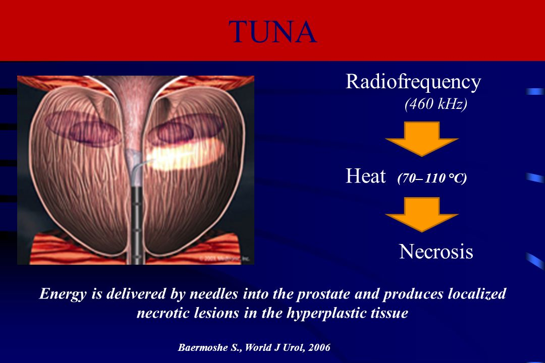 TUNA Radiofrequency Heat (70– 110 °C) Necrosis (460 kHz)