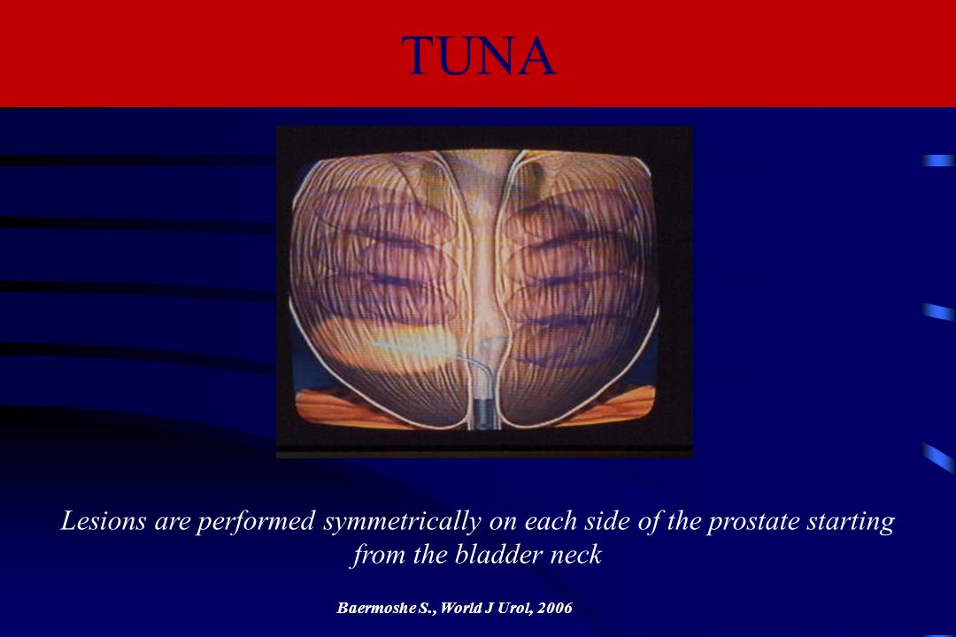 TUNA Lesions are performed symmetrically on each side of the prostate starting from the bladder neck.