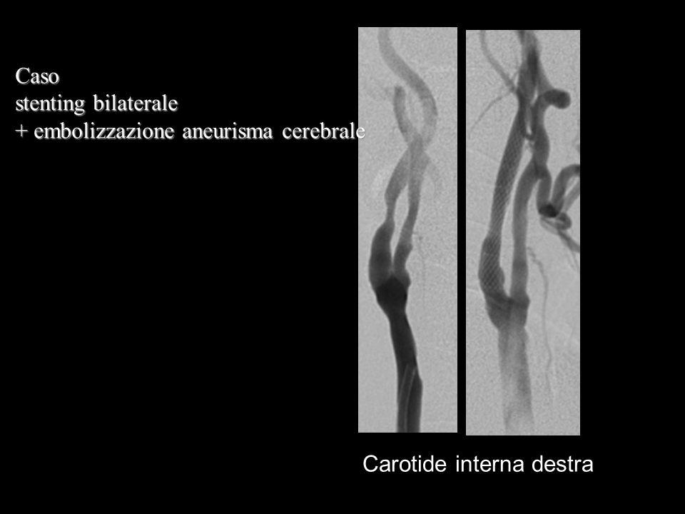 Caso stenting bilaterale + embolizzazione aneurisma cerebrale Carotide interna destra