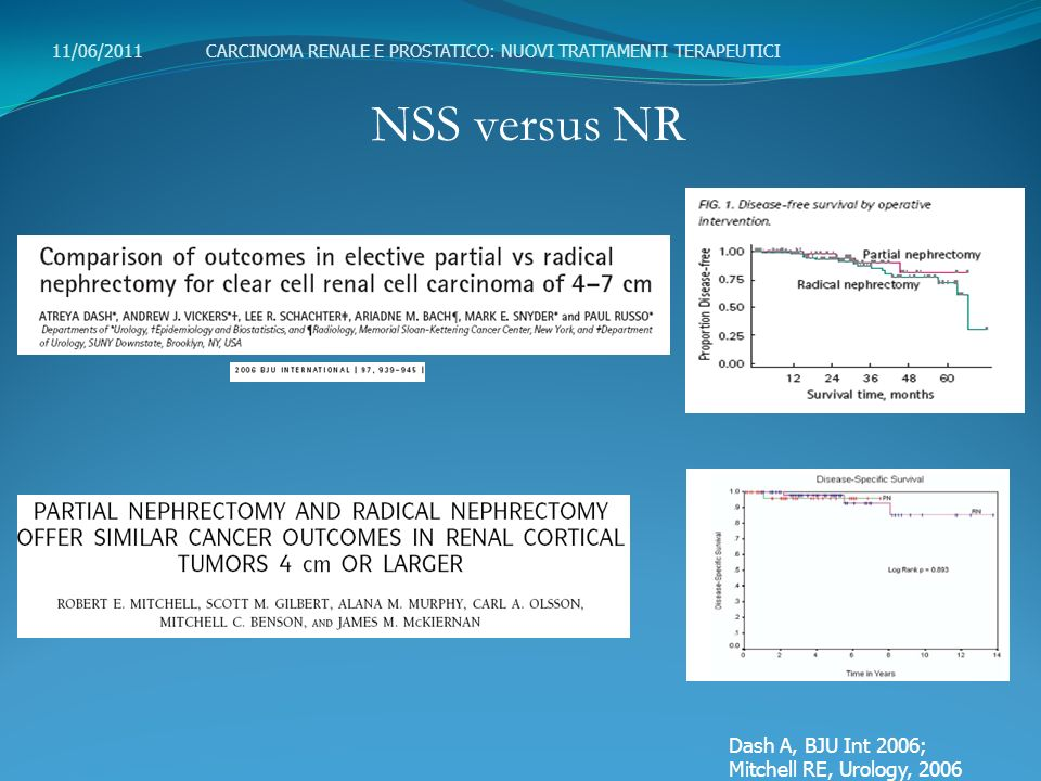 NSS versus NR Dash A, BJU Int 2006; Mitchell RE, Urology, 2006
