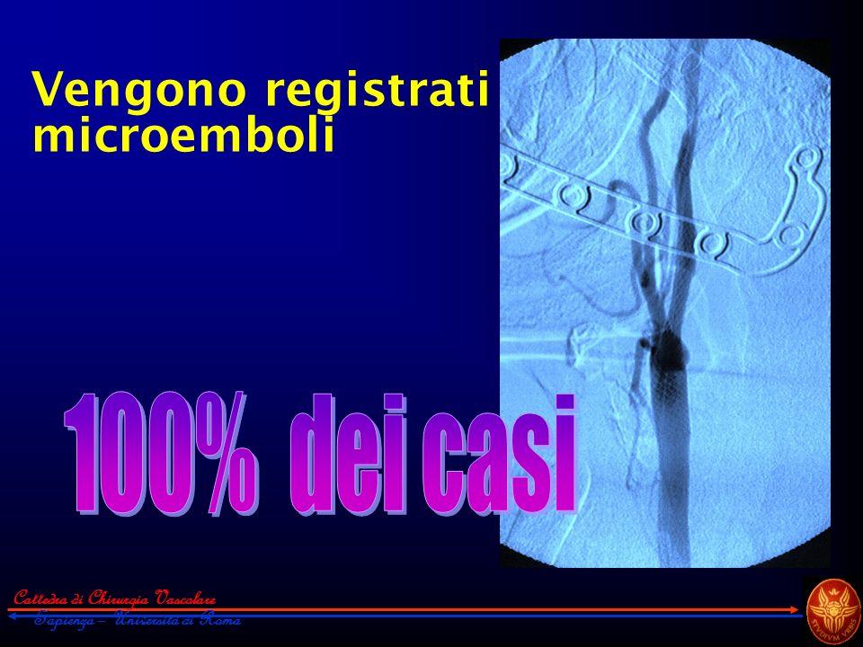 Vengono registrati microemboli 100% dei casi