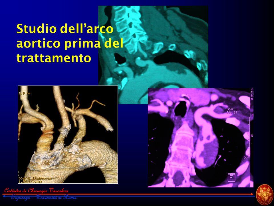 Studio dell'arco aortico prima del trattamento