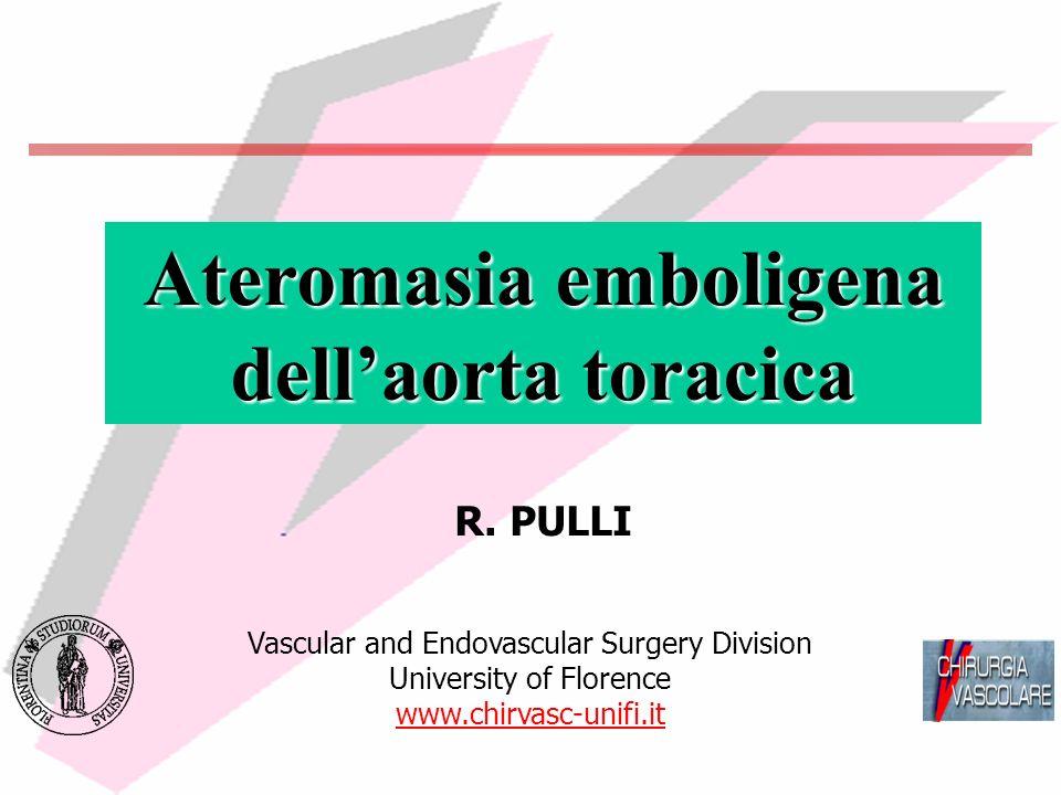 Ateromasia emboligena dell'aorta toracica