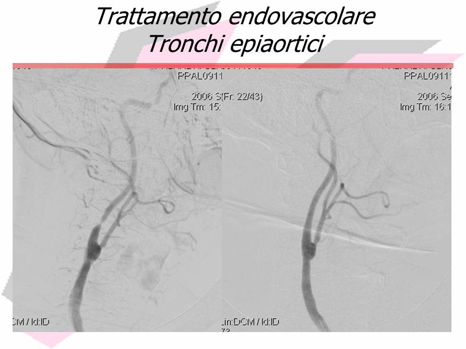 Trattamento endovascolare Tronchi epiaortici