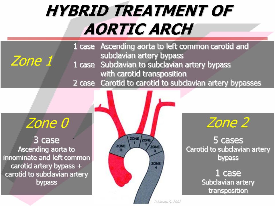 HYBRID TREATMENT OF AORTIC ARCH