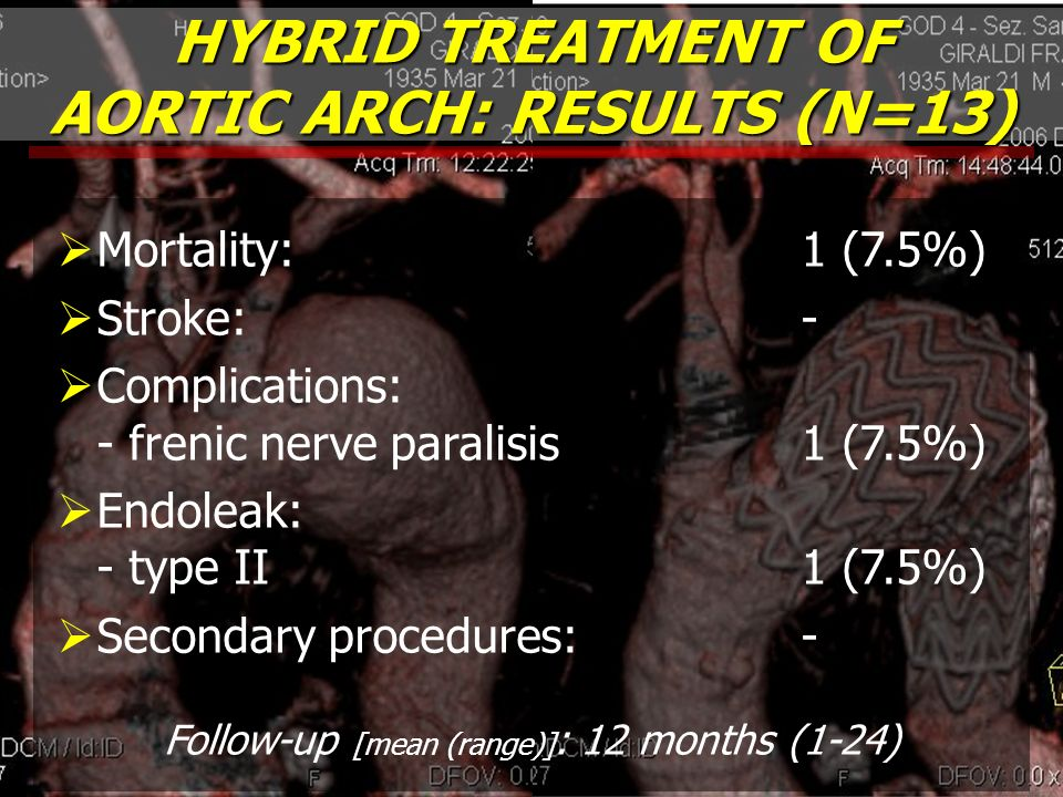 HYBRID TREATMENT OF AORTIC ARCH: RESULTS (N=13)
