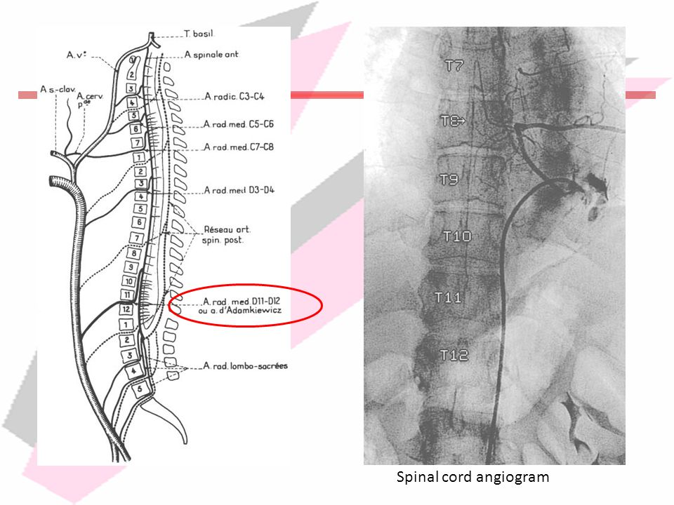 Spinal cord angiogram
