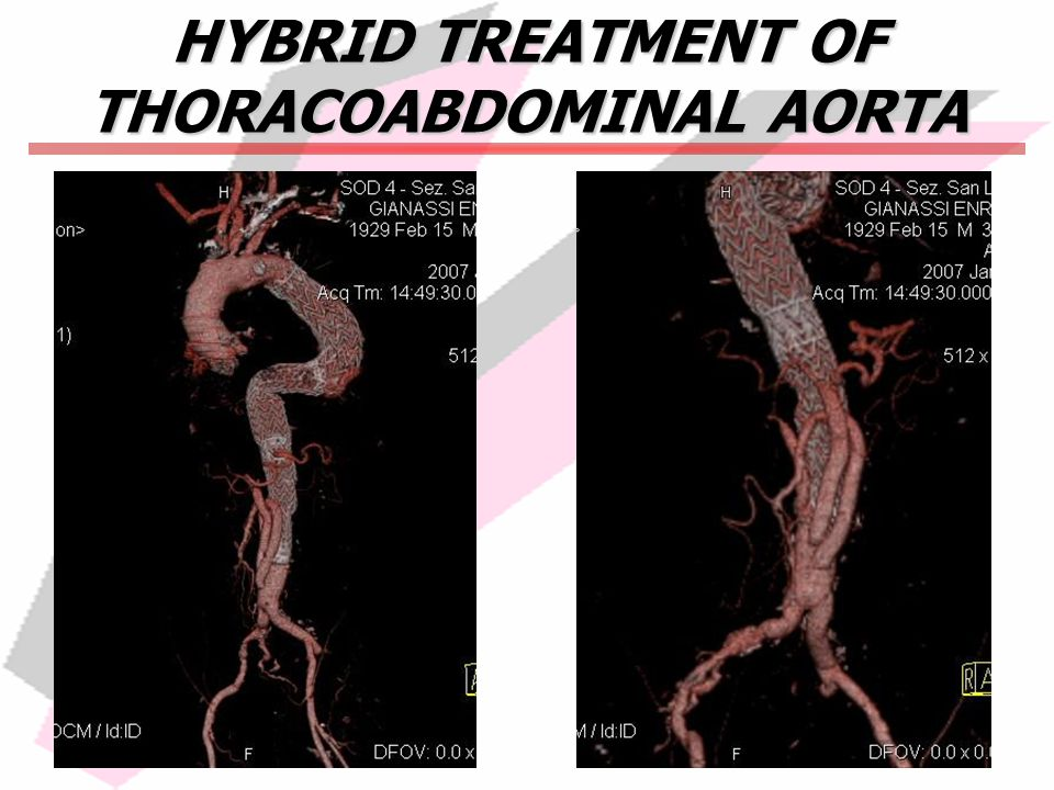 HYBRID TREATMENT OF THORACOABDOMINAL AORTA