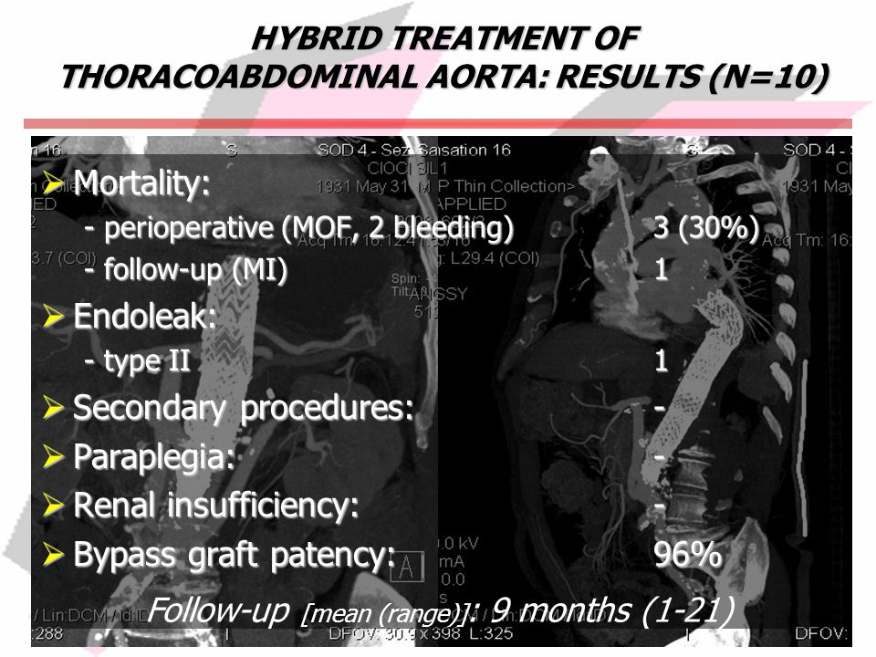 HYBRID TREATMENT OF THORACOABDOMINAL AORTA: RESULTS (N=10)