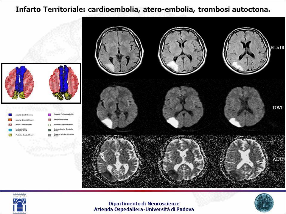 Infarto Territoriale: cardioembolia, atero-embolia, trombosi autoctona.