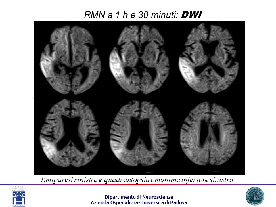 RMN a 1 h e 30 minuti: DWI Emiparesi sinistra e quadrantopsia omonima inferiore sinistra