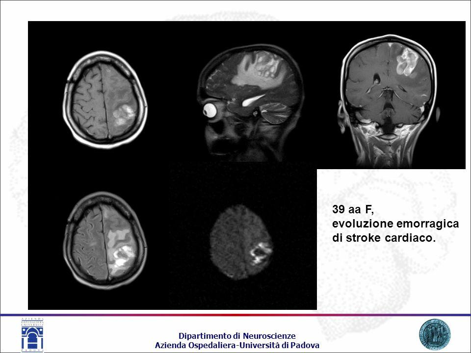 39 aa F, evoluzione emorragica di stroke cardiaco.