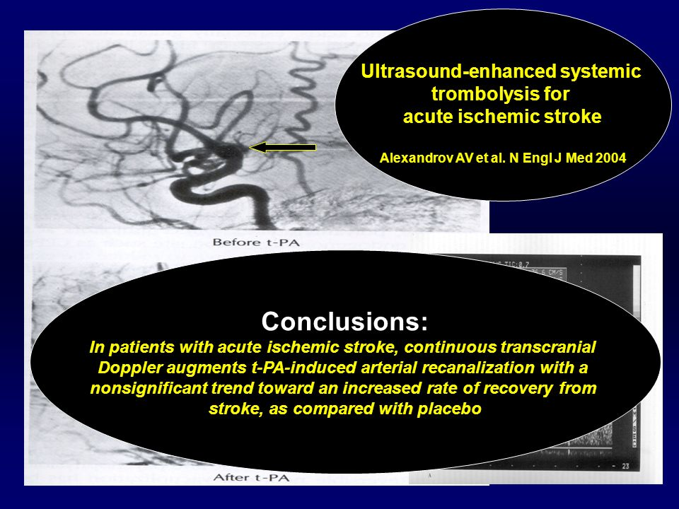 Conclusions: Ultrasound-enhanced systemic trombolysis for
