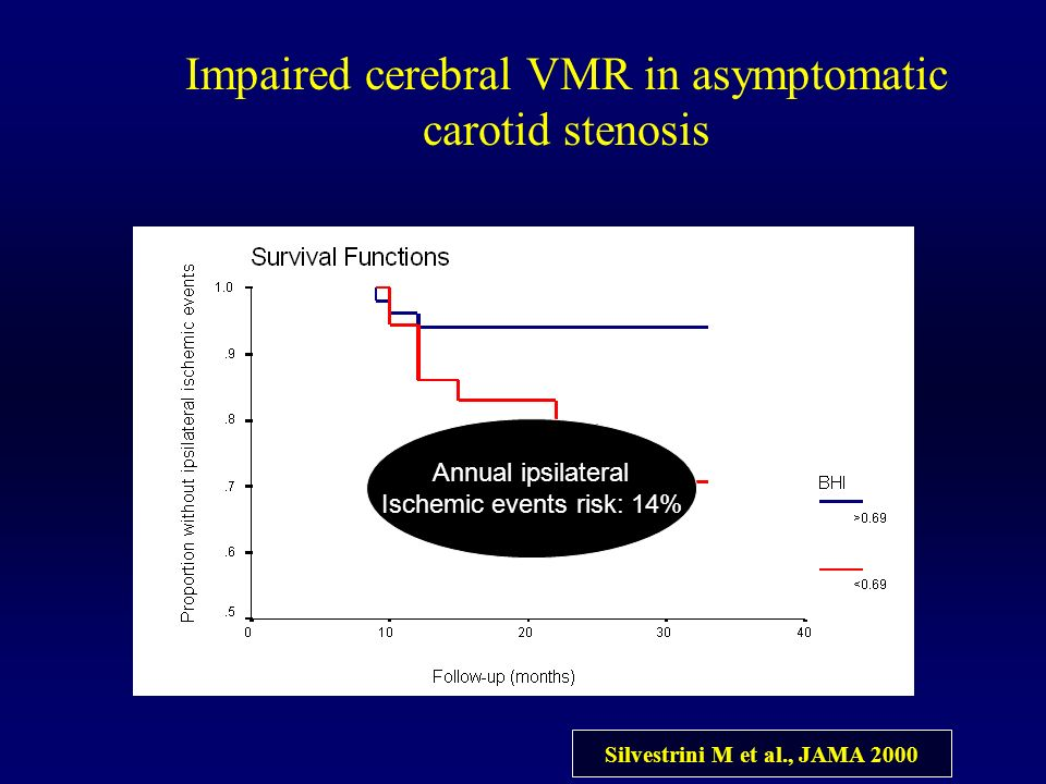 Impaired cerebral VMR in asymptomatic carotid stenosis