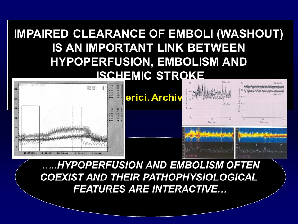 IMPAIRED CLEARANCE OF EMBOLI (WASHOUT) IS AN IMPORTANT LINK BETWEEN
