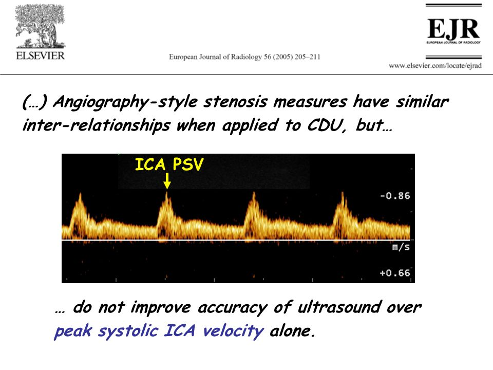 (…) Angiography-style stenosis measures have similar inter-relationships when applied to CDU, but…