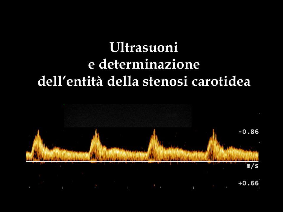 dell'entità della stenosi carotidea