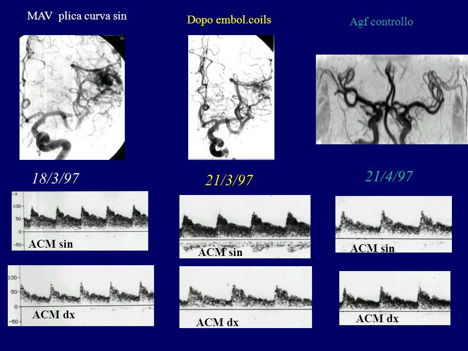 21/4/97 18/3/97 21/3/97 MAV plica curva sin Dopo embol.coils