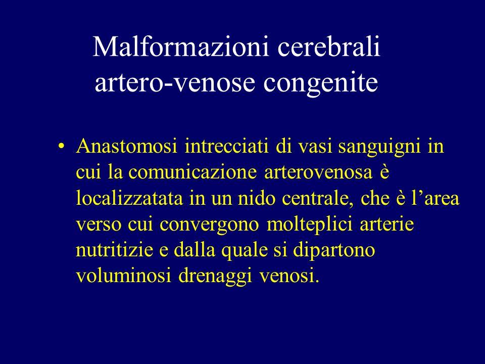 Malformazioni cerebrali artero-venose congenite
