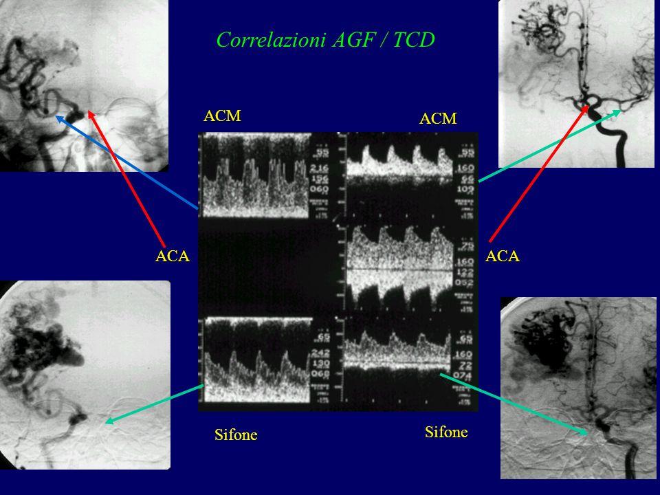 Correlazioni AGF / TCD ACM ACM ACA ACA Sifone Sifone
