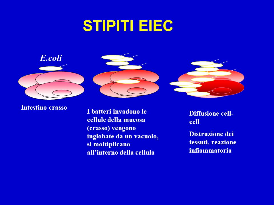 STIPITI EIEC E.coli Intestino crasso