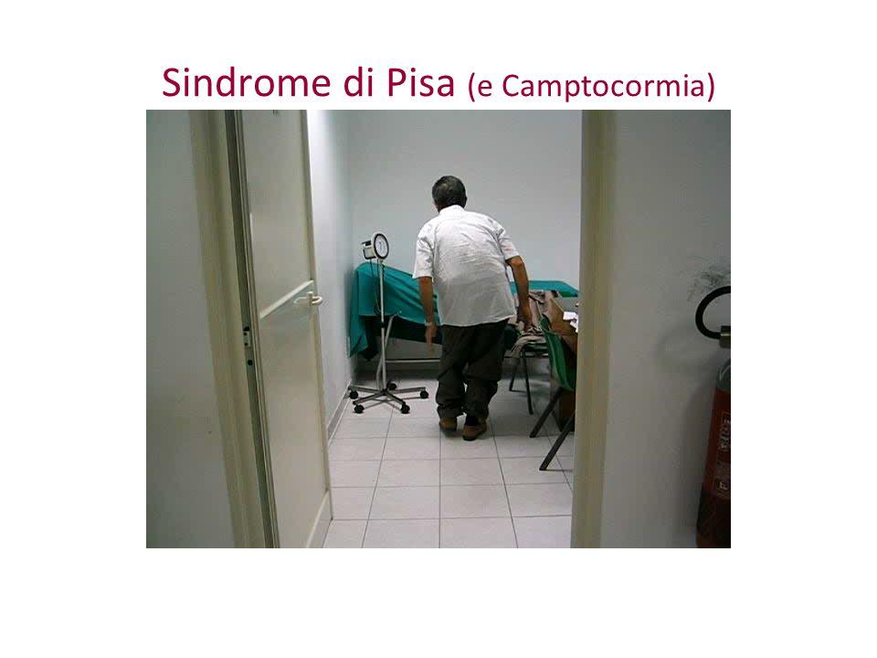 Sindrome di Pisa (e Camptocormia)