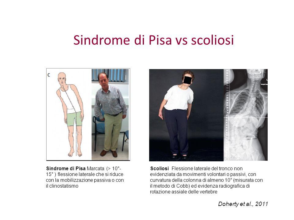 Sindrome di Pisa vs scoliosi