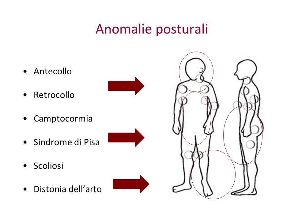 Anomalie posturali Antecollo Retrocollo Camptocormia Sindrome di Pisa