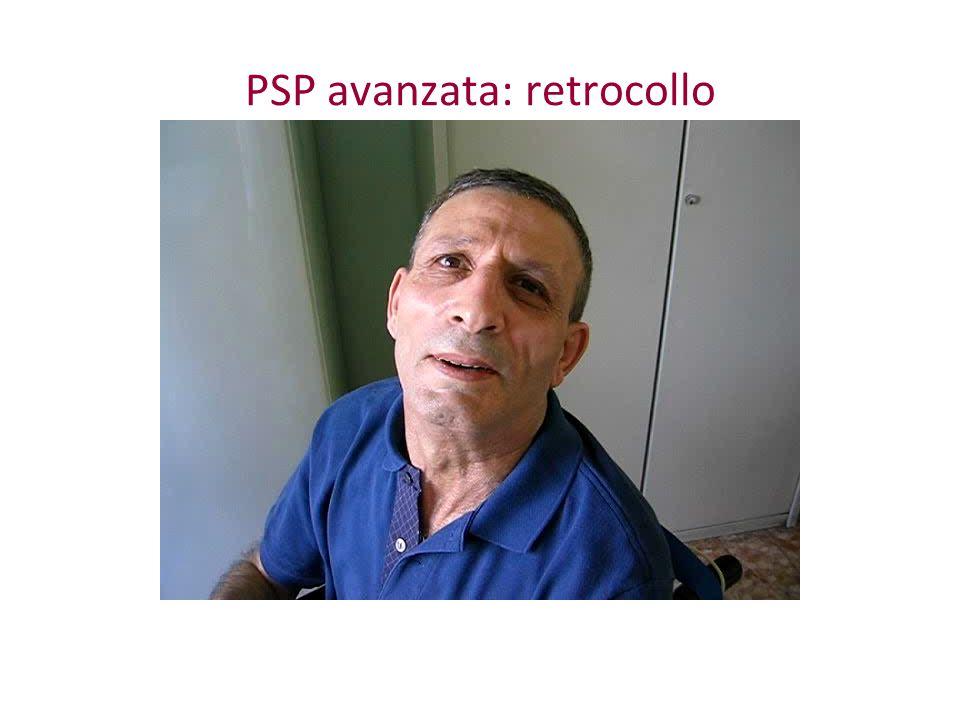 PSP avanzata: retrocollo