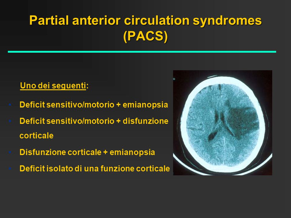 Partial anterior circulation syndromes (PACS)