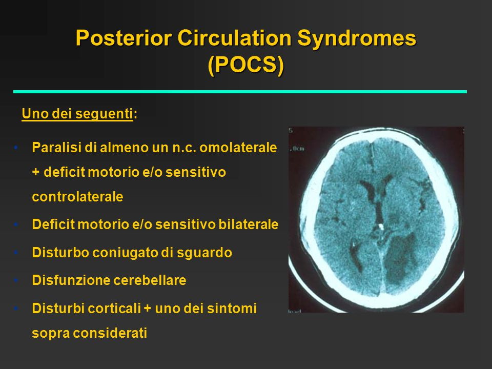 Posterior Circulation Syndromes (POCS)
