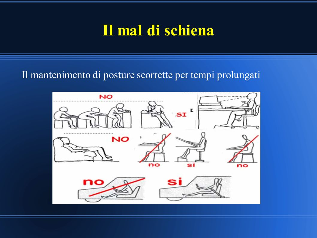 Il mal di schiena Il mantenimento di posture scorrette per tempi prolungati