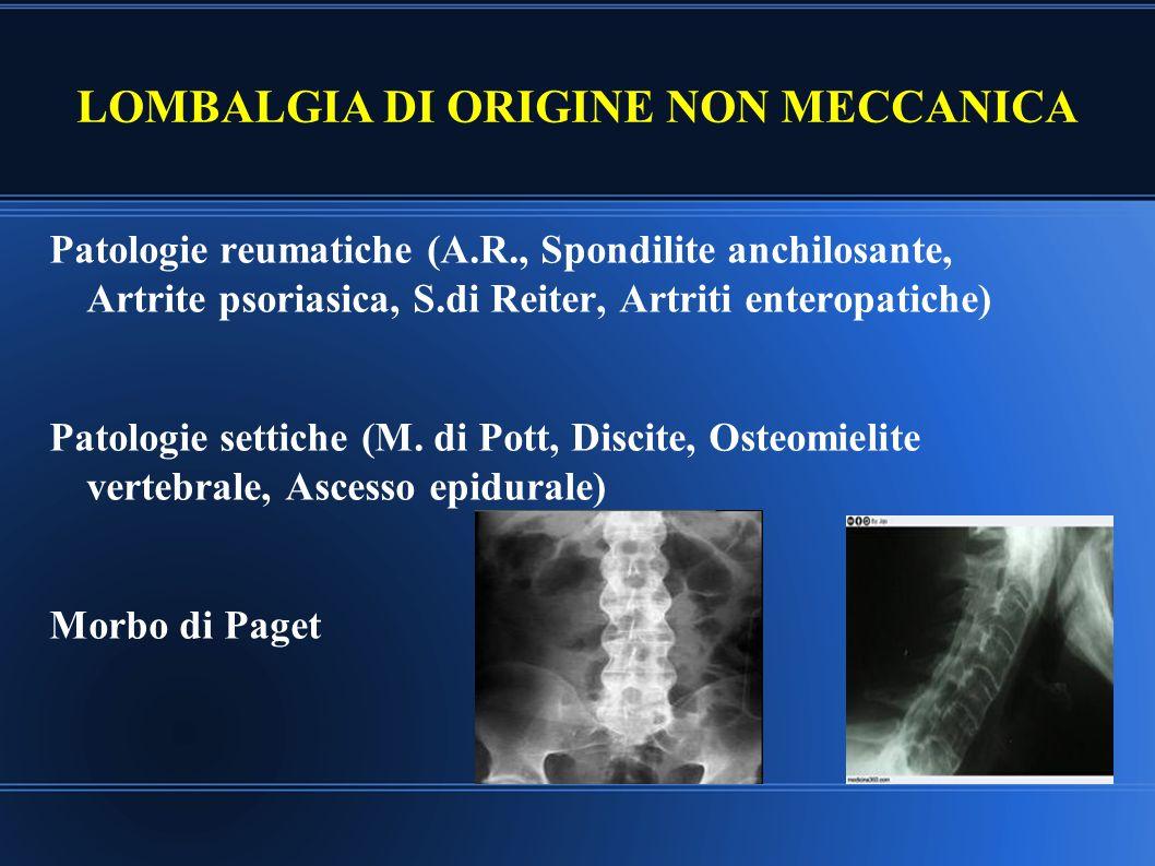 LOMBALGIA DI ORIGINE NON MECCANICA