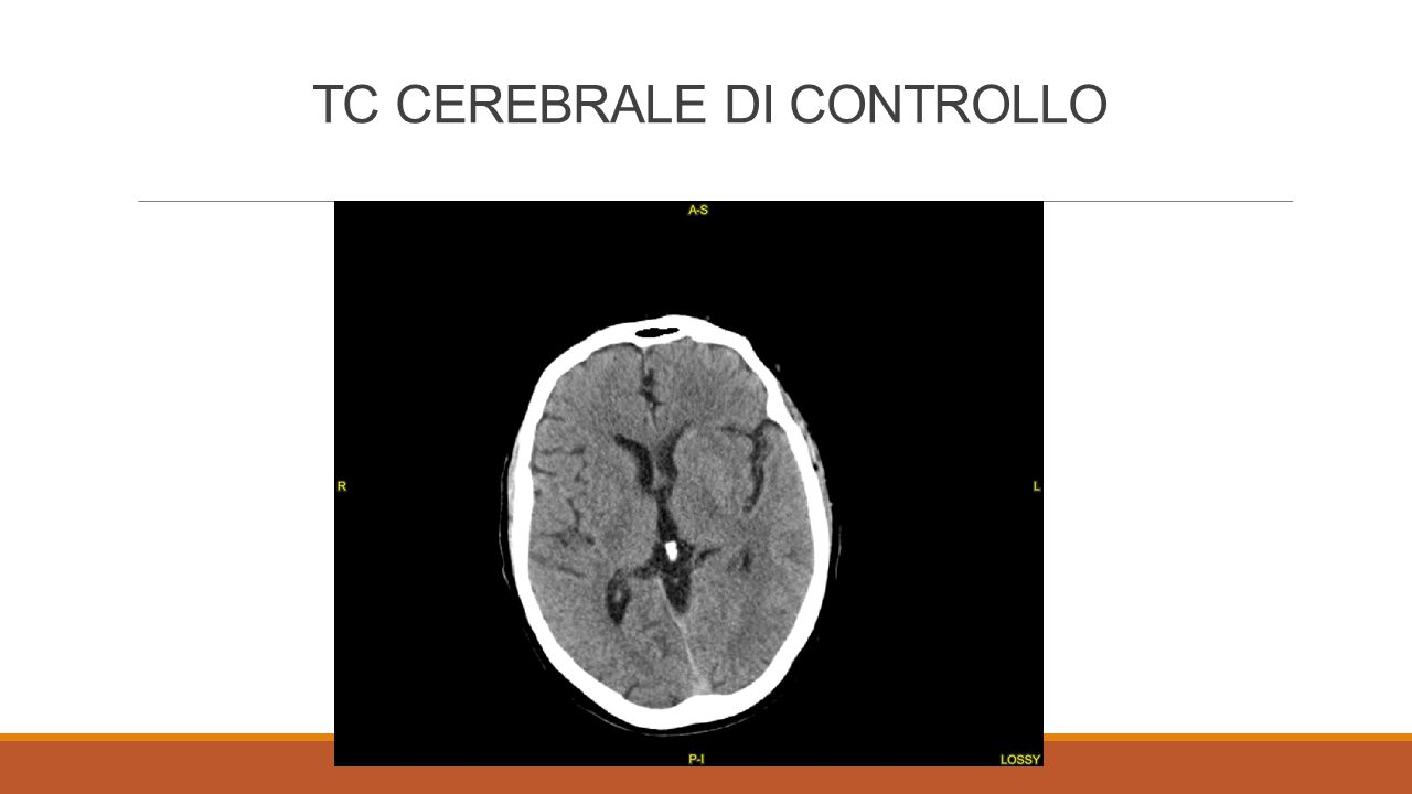 TC CEREBRALE DI CONTROLLO