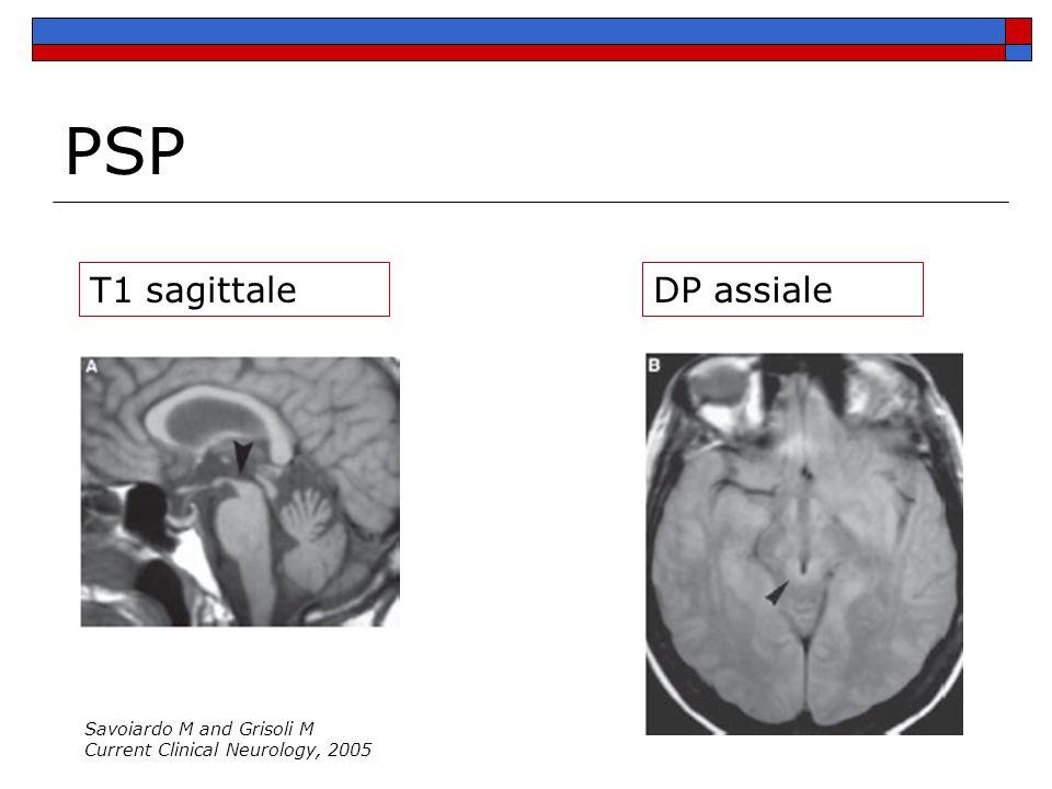 PSP T1 sagittale DP assiale Savoiardo M and Grisoli M