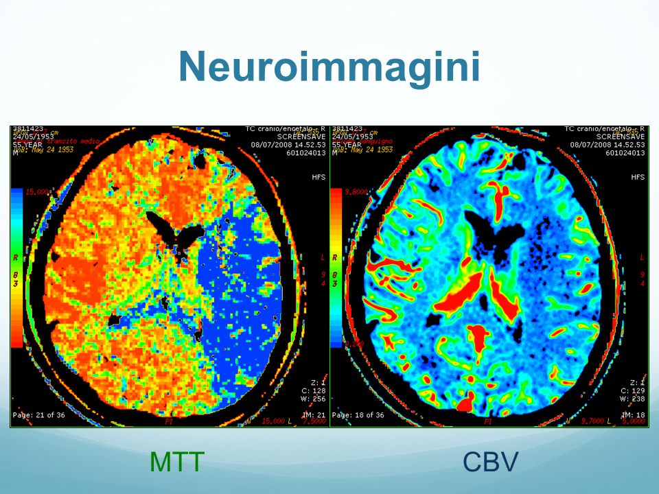 Neuroimmagini