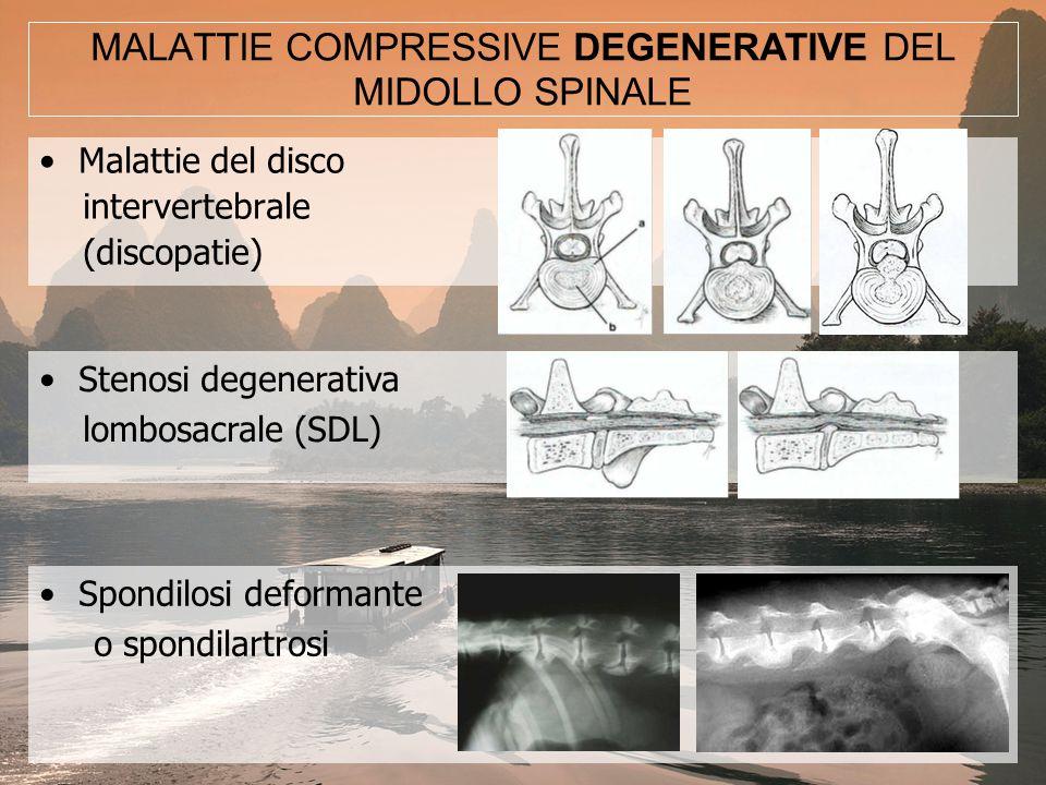 MALATTIE COMPRESSIVE DEGENERATIVE DEL MIDOLLO SPINALE