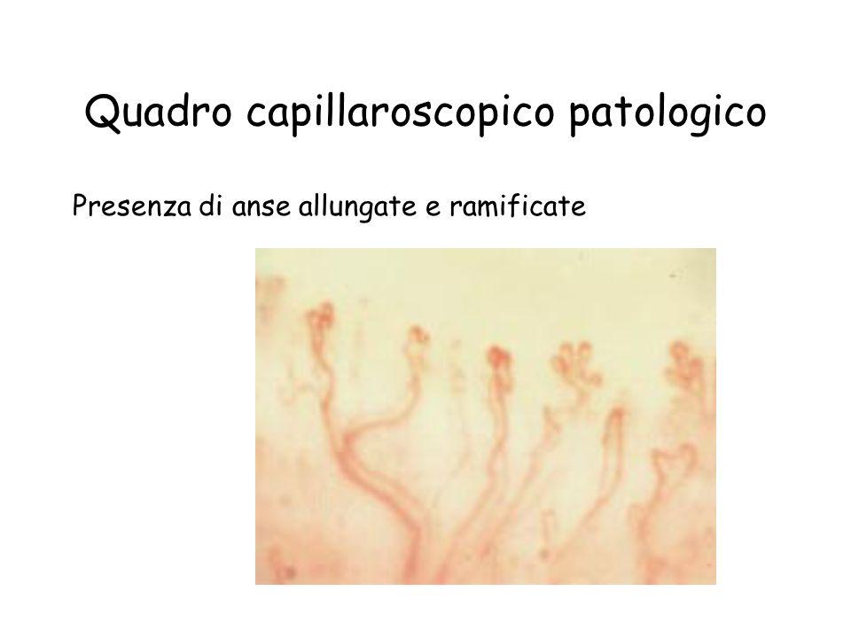 Quadro capillaroscopico patologico