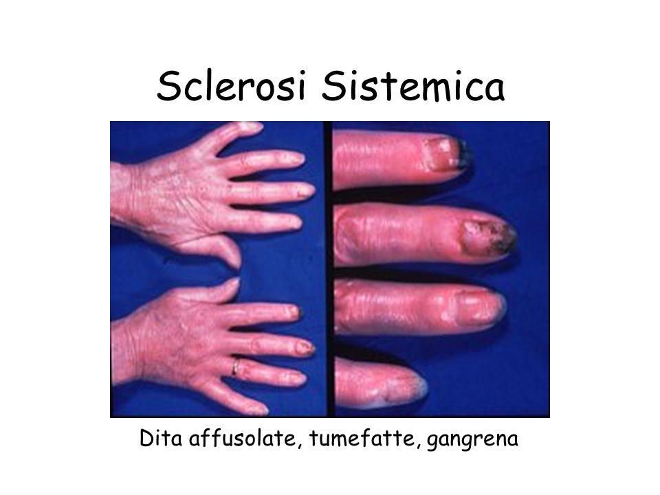 Sclerosi Sistemica Dita affusolate, tumefatte, gangrena