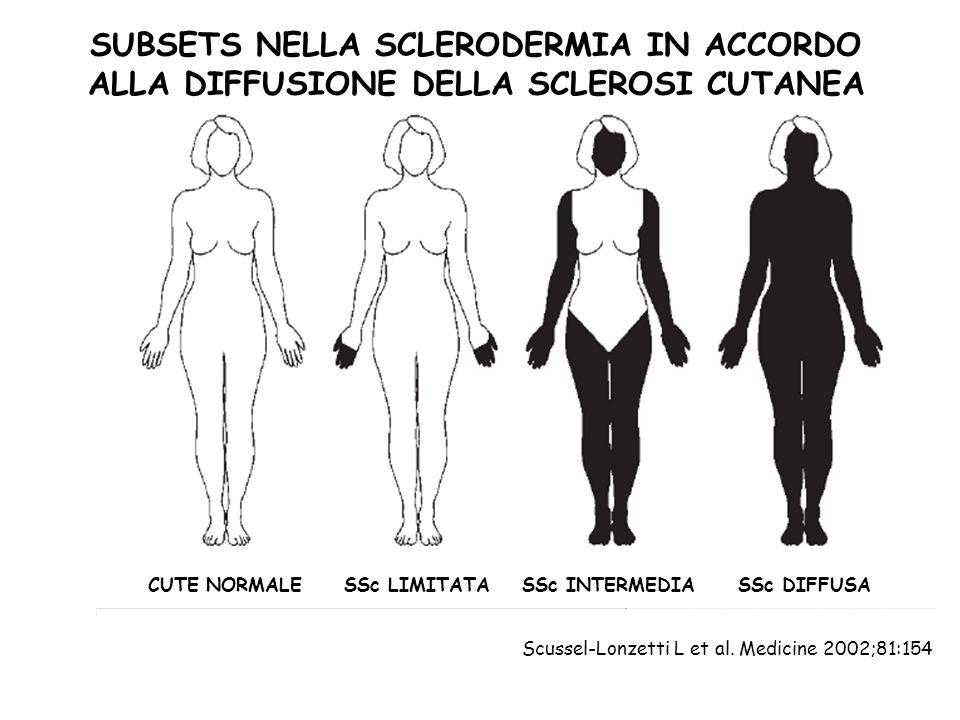 SUBSETS NELLA SCLERODERMIA IN ACCORDO ALLA DIFFUSIONE DELLA SCLEROSI CUTANEA